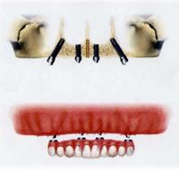 Upper jaw.jpg