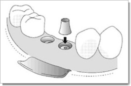 インプラント手術その5