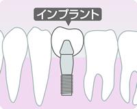implant2.jpg